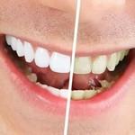 вчасно відбілити зуби