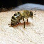 Укус бджоли, що робити