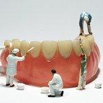 Чистка зубів проф