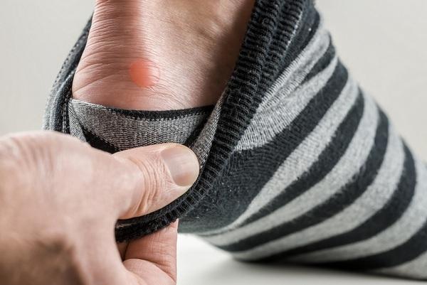 що робити коли натирає взуття