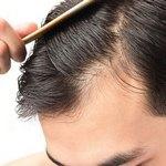 ці вітаміни рятують від випадіння волосся